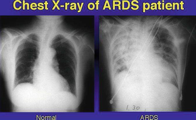 پاتوفیزیولوژی و مدیریت ونتیلاتور در ARDS