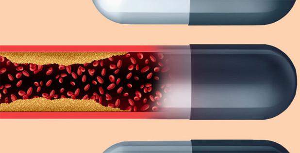 نقش استاتینها در درمان عفونتهای حاد ویروسی